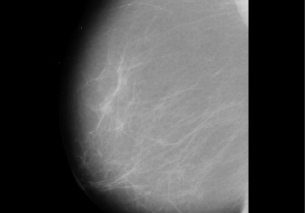 Detalle de una de las mamografías utilizadas durante la investigación.