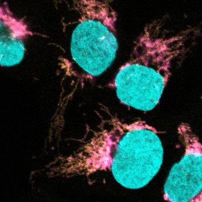 La microscòpia confocal mostra la co-localització de EXD2 (magenta) amb el ribosoma mitocondrial (groc). L'ADN es tenyeix per definir el nucli (cian).