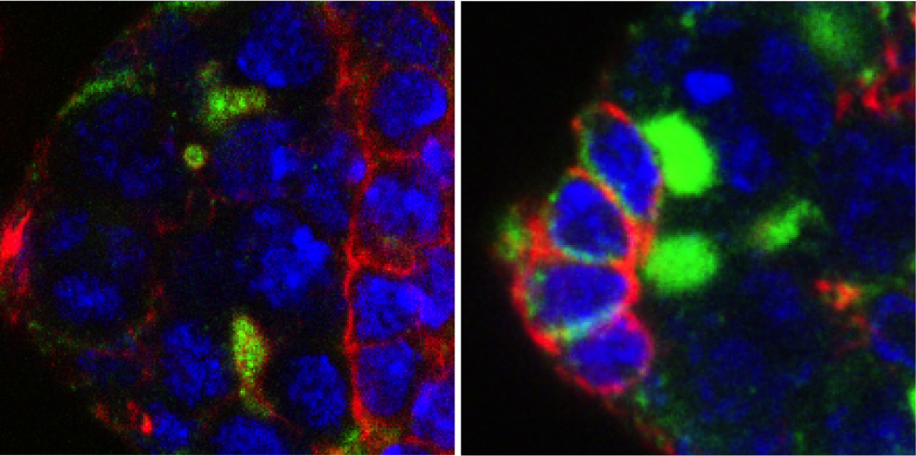 Microscopy of the germ stem cells (bright green) of the Drosophila (fruit fly) ovarium of flies lacking EXD2. Flies in the right panel were treated with antioxidants to rescue stem cells. Image: Travis Stracker, IRB Barcelona.