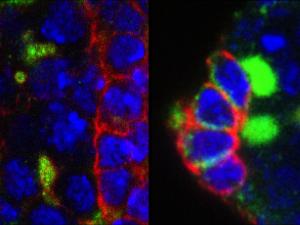Microscòpia de les cèl·lules mare germinals (verd brillant) de l'ovari de Drosophila de les mosques que no tenen EXD2. Les mosques al panell dret van ser tractades amb antioxidants per rescatar les cèl·lules mare. Imatge: Travis Stracker, IRB Barcelona.